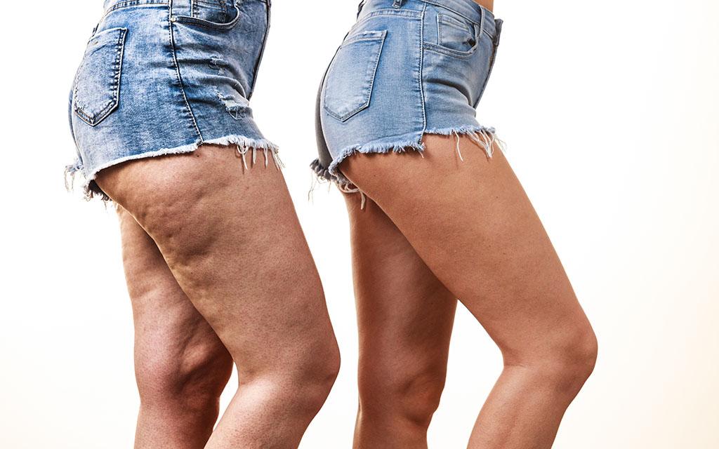 Operación de celulitis en piernas y glúteos - Antes y después