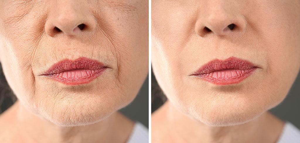 Medicina estética facial en A Coruña - Rejuvenecimiento y embellecimiento