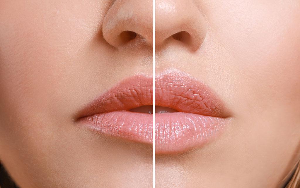 Precio y opiniones del ácido hialurónico para labios